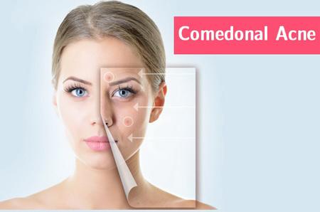 comedonal-acne